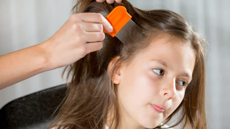 head lice advice